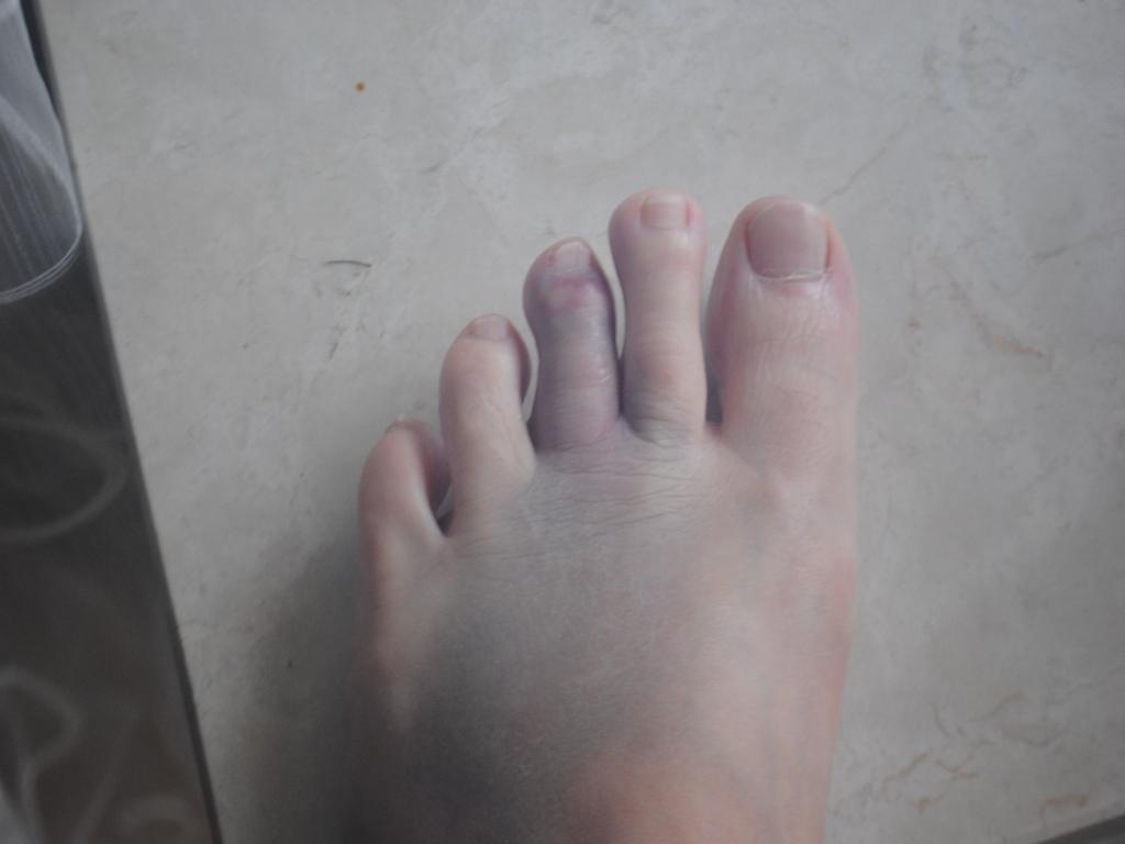 Die Zapfen auf zwischen den Fingern der Beine